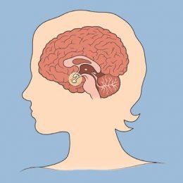 quiste-pituitario