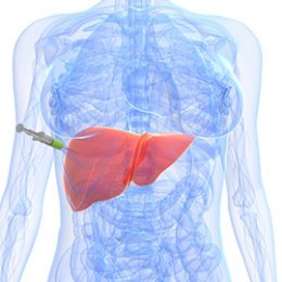 biopsia-hepatica
