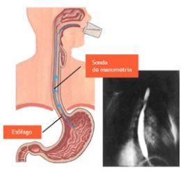 manometria-esofagica