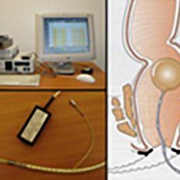 reentrenamiento-anorrectal